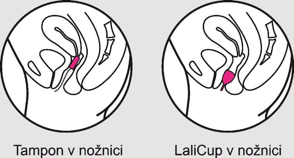 menstrualna skodelica proti tamponu